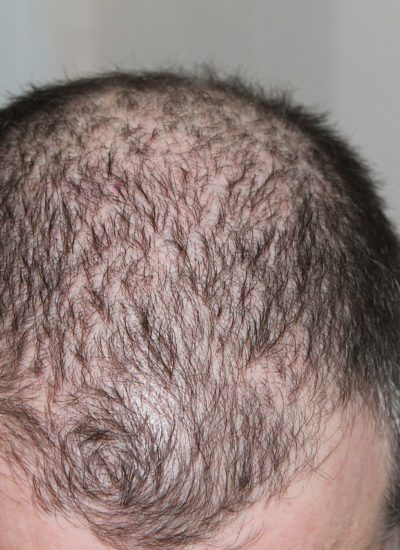 Hair Loss And Male Pattern Baldness Treatments